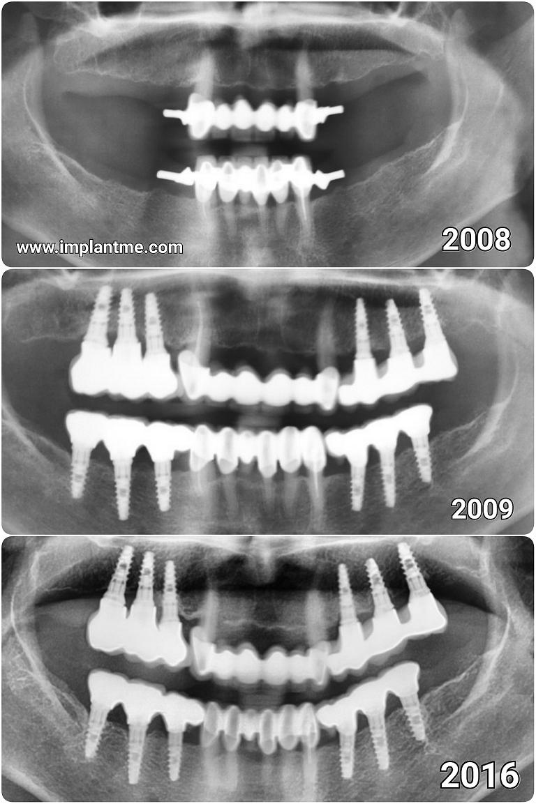 Implant ME