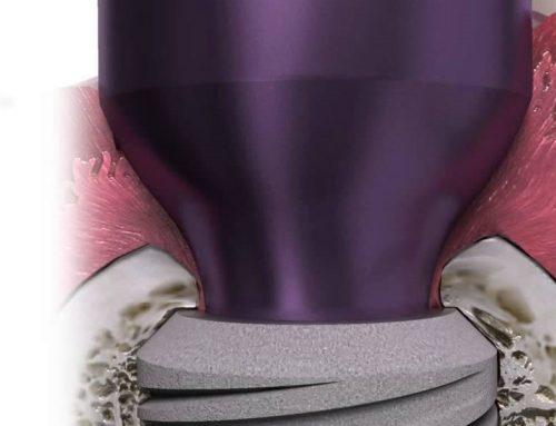 Platform Switching – Soft Tissue Esthetics