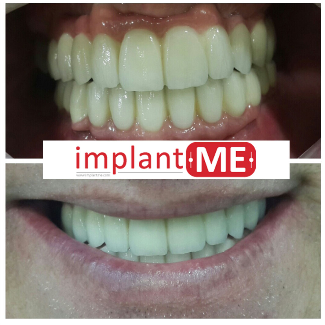 implantME