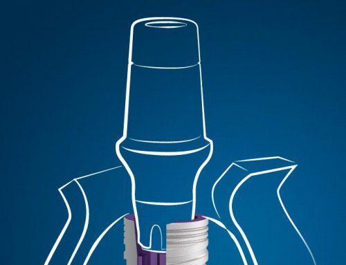 DO Dental Implants BREAK?